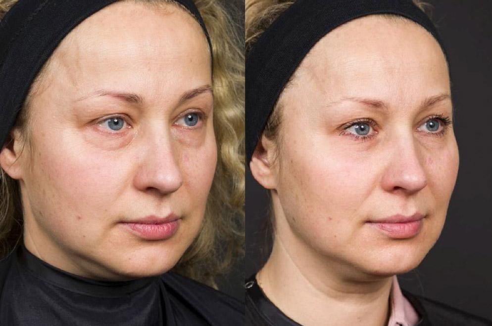 Przed i po 4 tygodniach